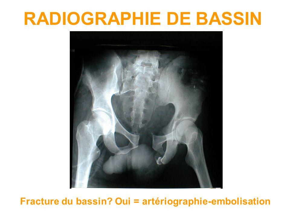 RADIOGRAPHIE DE BASSIN Fracture du bassin? Oui = artériographie-embolisation