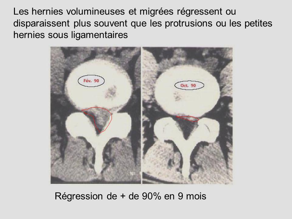 Régression de + de 90% en 9 mois Les hernies volumineuses et migrées régressent ou disparaissent plus souvent que les protrusions ou les petites herni