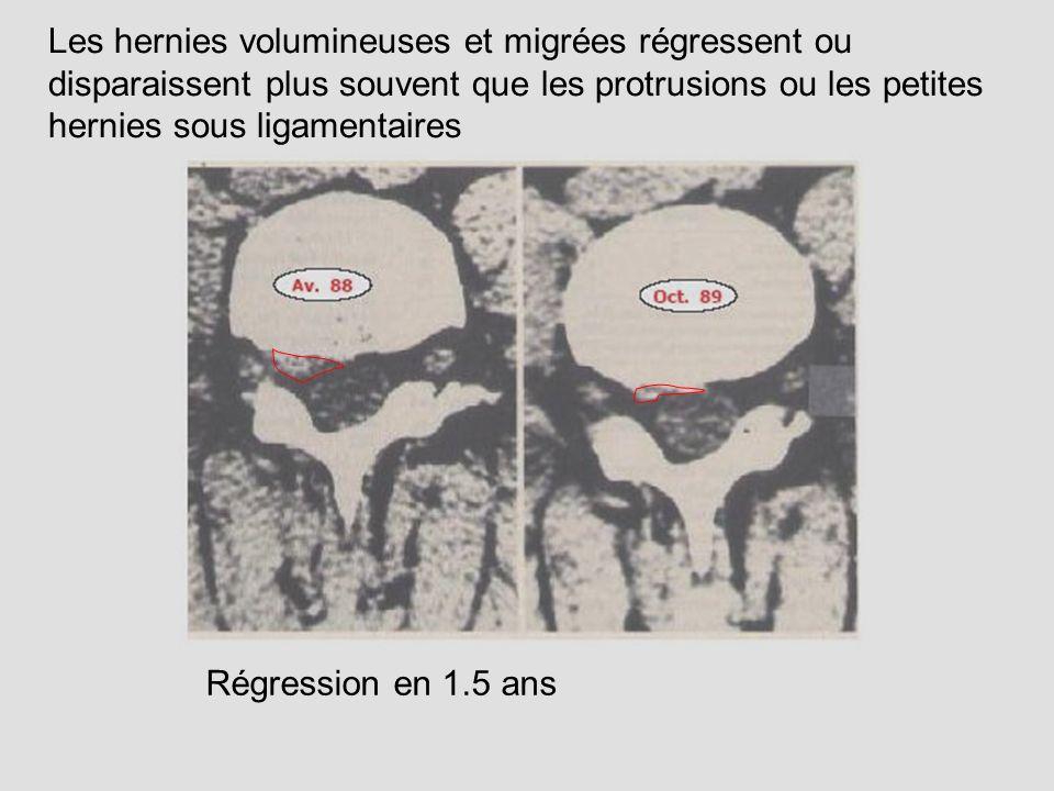 Régression en 1.5 ans Les hernies volumineuses et migrées régressent ou disparaissent plus souvent que les protrusions ou les petites hernies sous lig