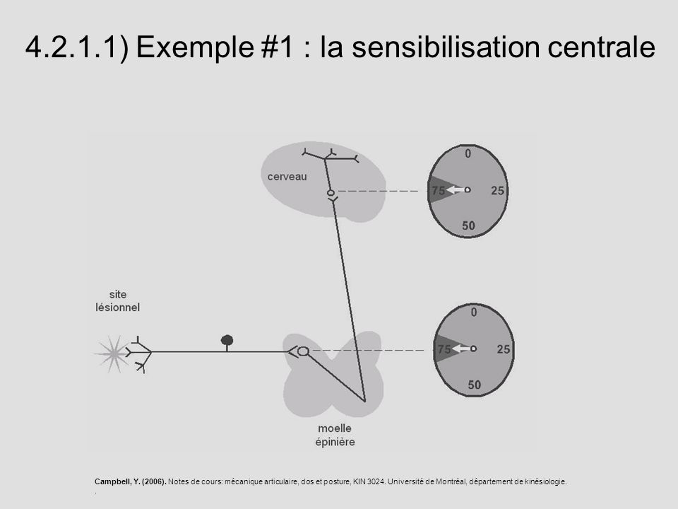 4.2.1.1) Exemple #1 : la sensibilisation centrale Campbell, Y. (2006). Notes de cours: mécanique articulaire, dos et posture, KIN 3024. Université de
