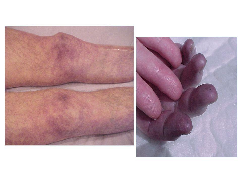 Quelle (s) défaillances viscérales présente ce patient ?