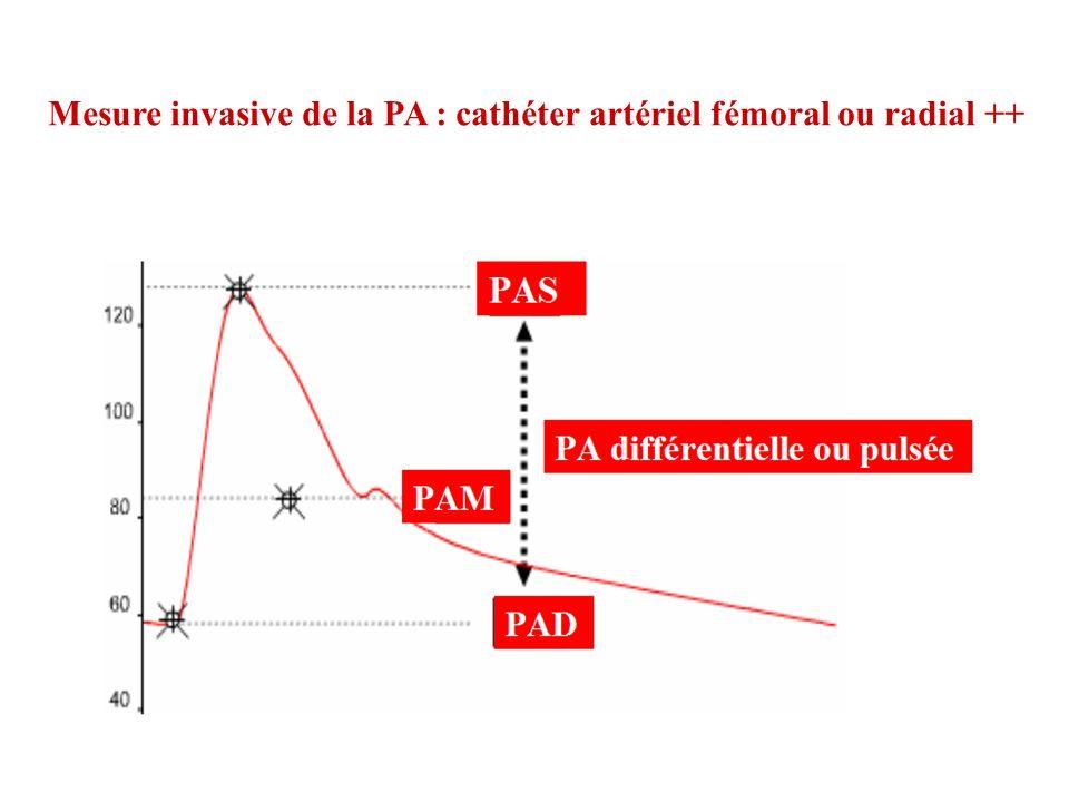 Mesure invasive de la PA : cathéter artériel fémoral ou radial ++
