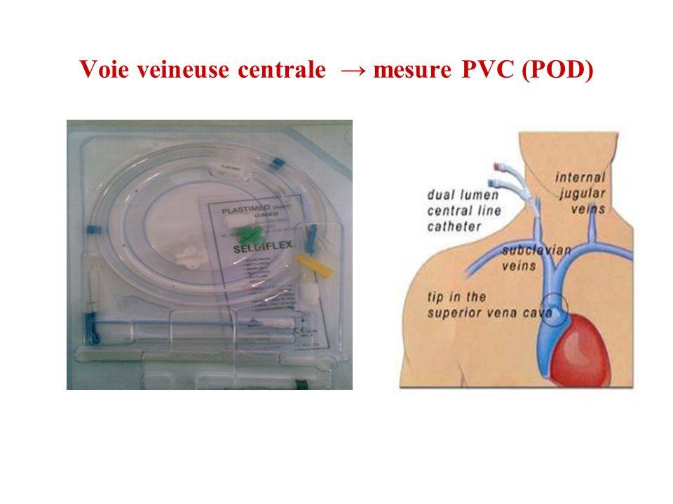 Voie veineuse centrale mesure PVC (POD)