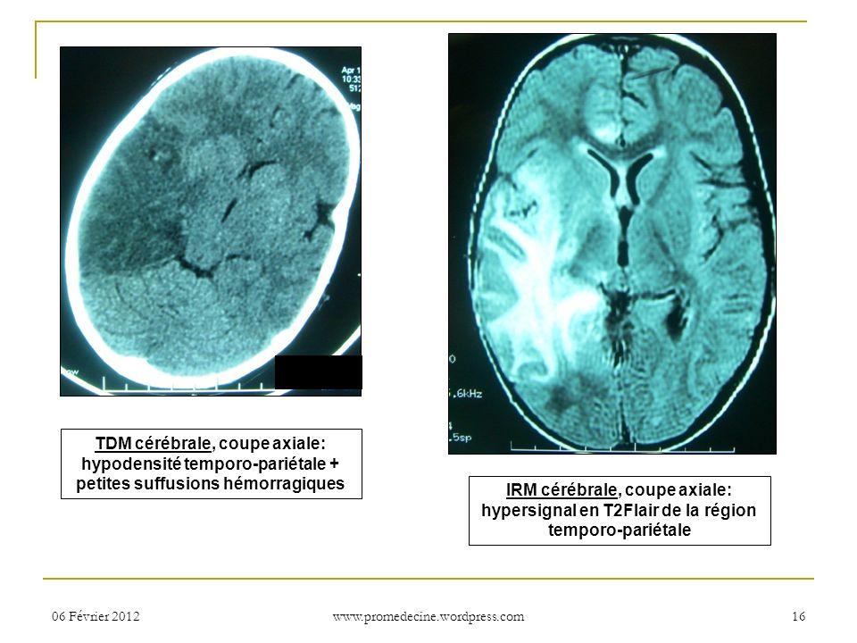 06 Février 201216 TDM cérébrale, coupe axiale: hypodensité temporo-pariétale + petites suffusions hémorragiques IRM cérébrale, coupe axiale: hypersign