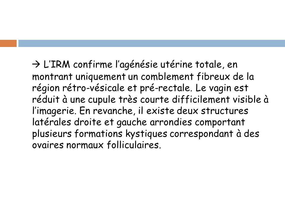 LIRM confirme lagénésie utérine totale, en montrant uniquement un comblement fibreux de la région rétro-vésicale et pré-rectale.