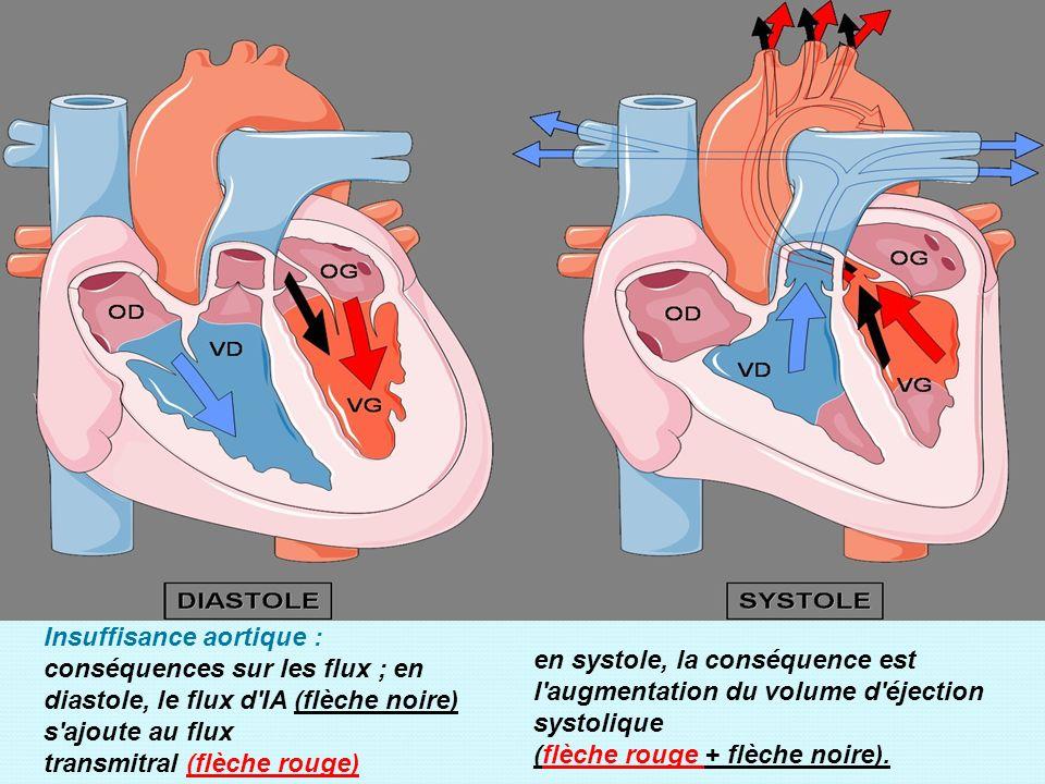 Insuffisance aortique : conséquences sur les flux ; en diastole, le flux d'IA (flèche noire) s'ajoute au flux transmitral (flèche rouge) en systole, l