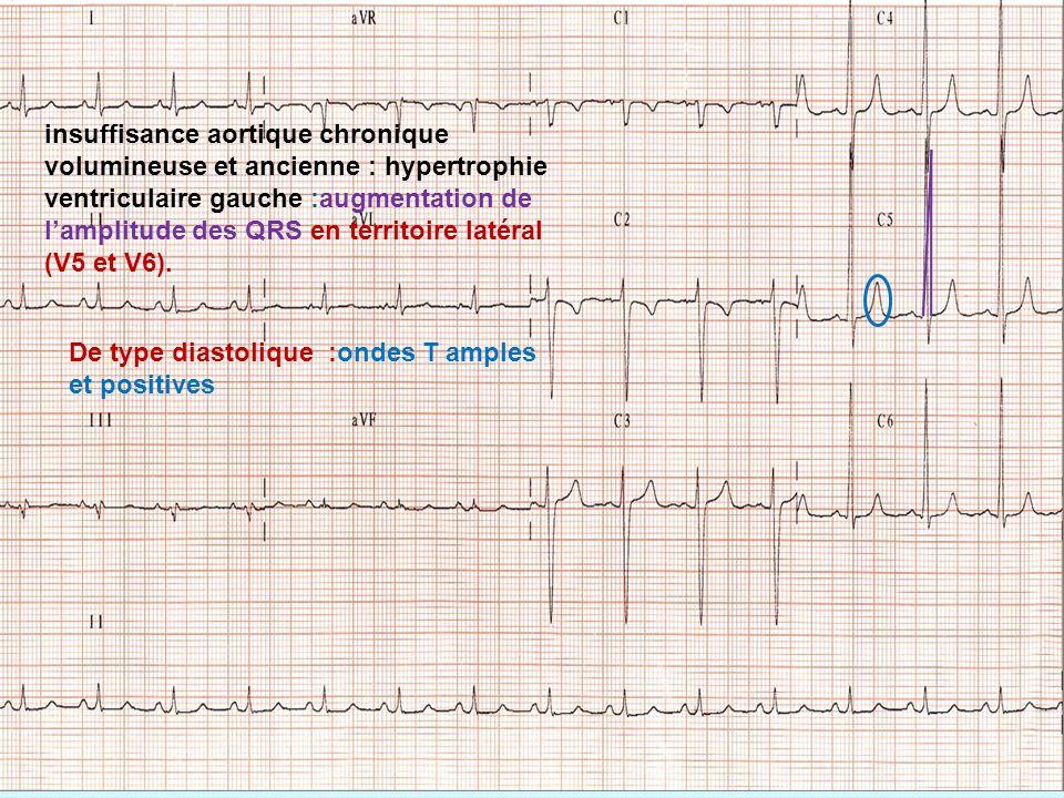 De type diastolique :ondes T amples et positives insuffisance aortique chronique volumineuse et ancienne : hypertrophie ventriculaire gauche :augmenta