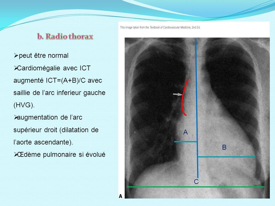A B C peut être normal Cardiomégalie avec ICT augmenté ICT=(A+B)/C avec saillie de larc inferieur gauche (HVG). augmentation de larc supérieur droit (