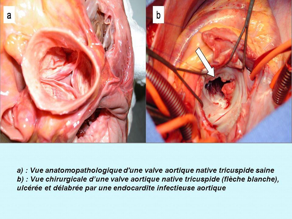 a) : Vue anatomopathologique d'une valve aortique native tricuspide saine b) : Vue chirurgicale dune valve aortique native tricuspide (flèche blanche)