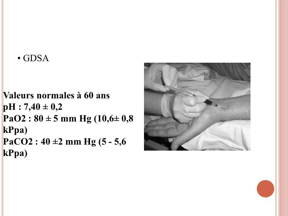 GDSA Valeurs normales à 60 ans pH : 7,40 ± 0,2 PaO2 : 80 ± 5 mm Hg (10,6± 0,8 kPpa) PaCO2 : 40 ±2 mm Hg (5 - 5,6 kPpa)