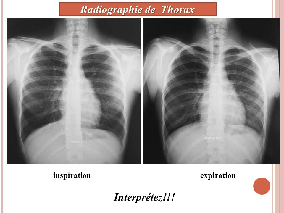 inspirationexpiration Interprétez!!! Radiographie de Thorax
