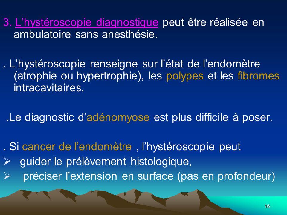 16 3. Lhystéroscopie diagnostique peut être réalisée en ambulatoire sans anesthésie.. Lhystéroscopie renseigne sur létat de lendomètre (atrophie ou hy