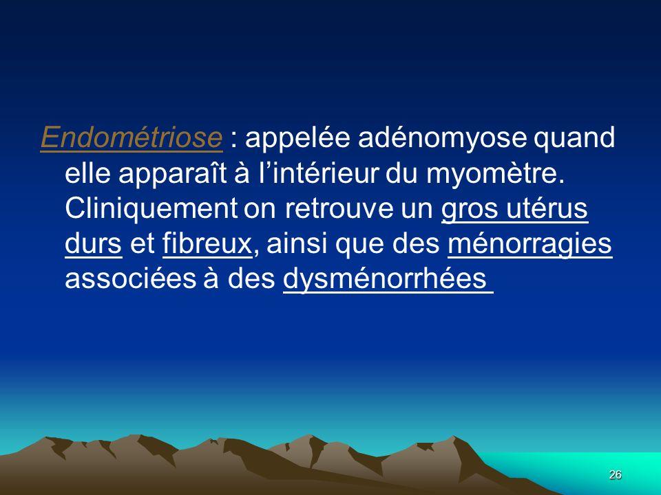 26 Endométriose : appelée adénomyose quand elle apparaît à lintérieur du myomètre. Cliniquement on retrouve un gros utérus durs et fibreux, ainsi que