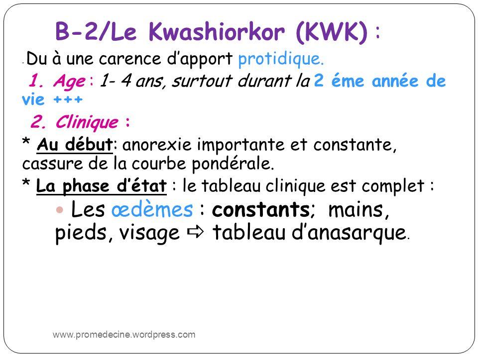 B-2/Le Kwashiorkor (KWK) : - Du à une carence dapport protidique. 1. Age : 1- 4 ans, surtout durant la 2 éme année de vie +++ 2. Clinique : * Au début
