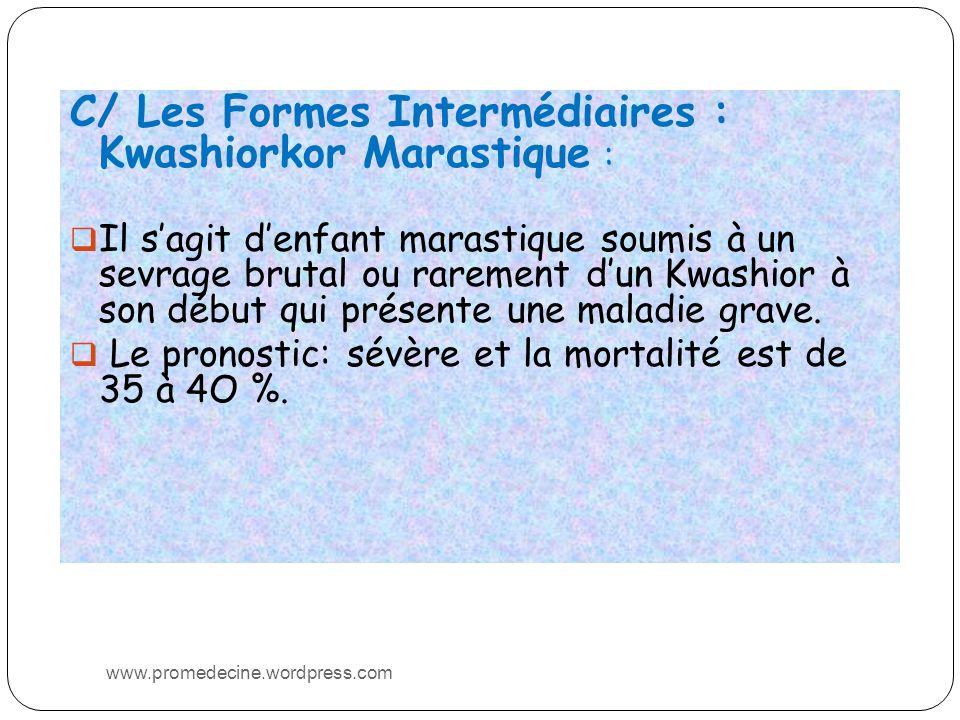 C/ Les Formes Intermédiaires : Kwashiorkor Marastique : Il sagit denfant marastique soumis à un sevrage brutal ou rarement dun Kwashior à son début qui présente une maladie grave.