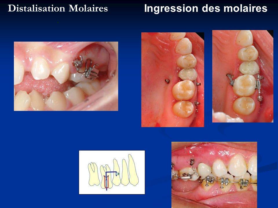 Distalisation Molaires. Ingression des molaires