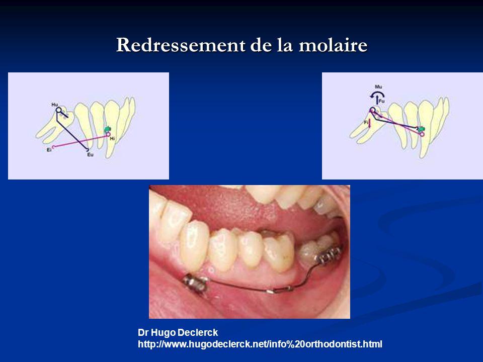 Redressement de la molaire Dr Hugo Declerck http://www.hugodeclerck.net/info%20orthodontist.html