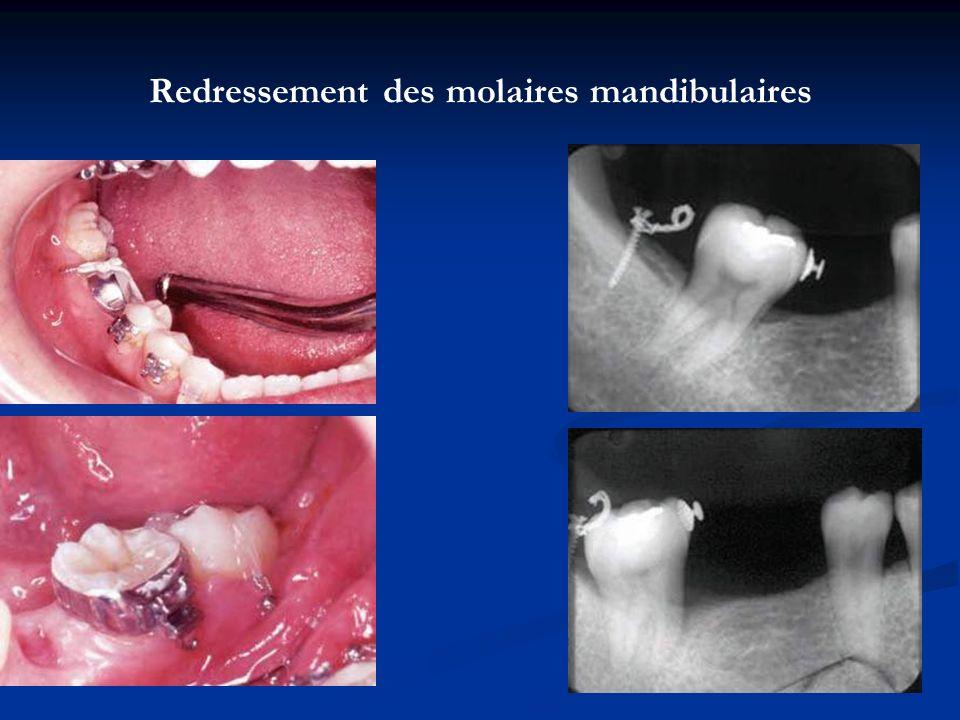 Redressement des molaires mandibulaires