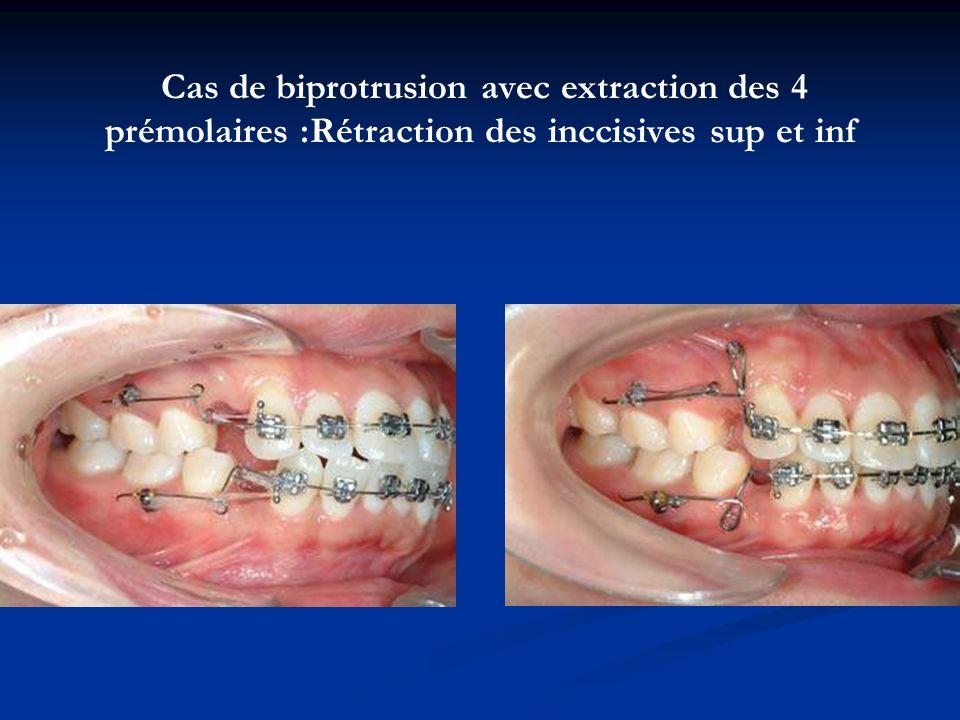 Cas de biprotrusion avec extraction des 4 prémolaires :Rétraction des inccisives sup et inf