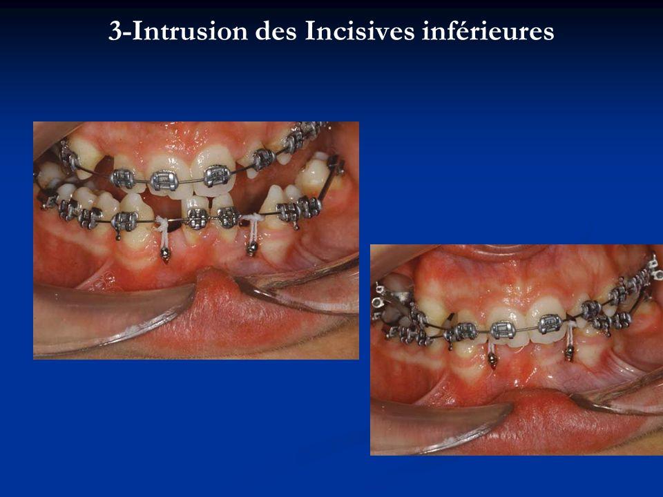 3-Intrusion des Incisives inférieures
