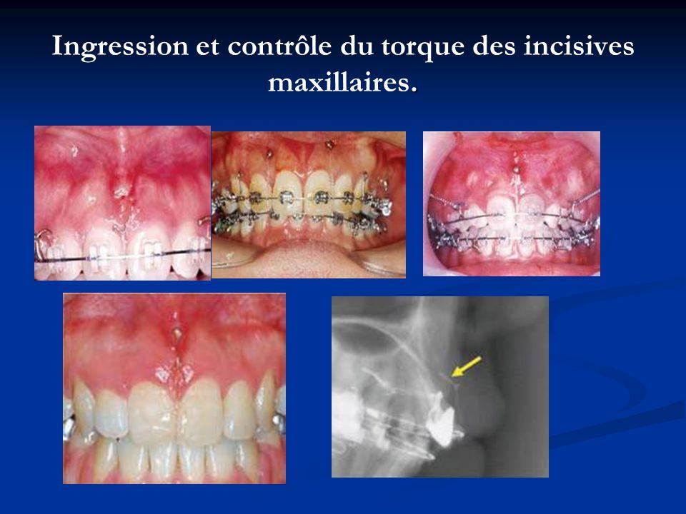. Ingression et contrôle du torque des incisives maxillaires.
