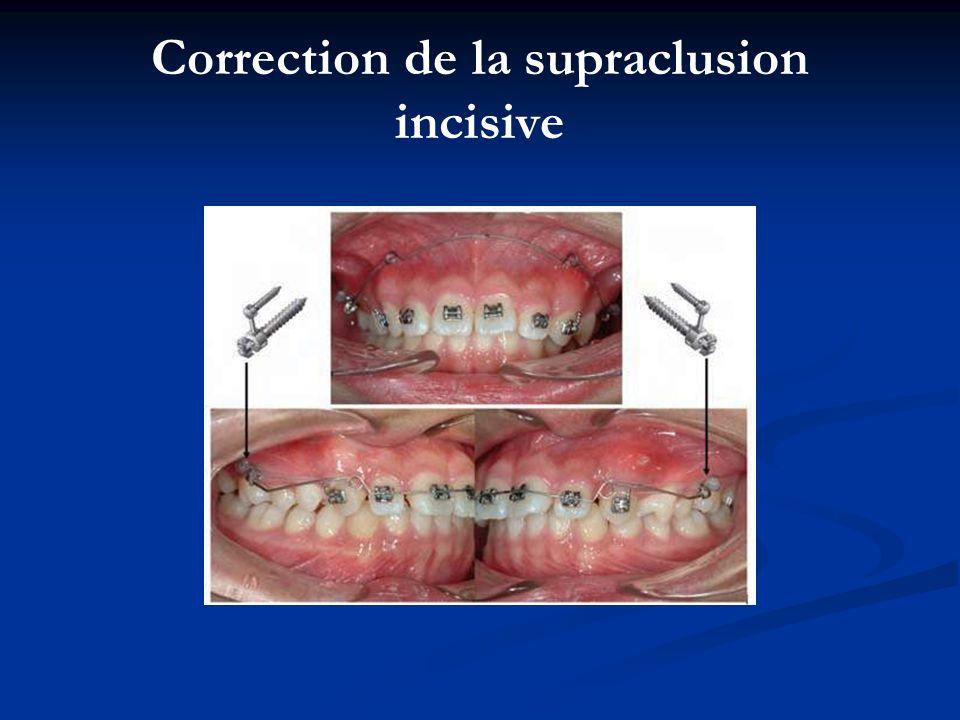 Correction de la supraclusion incisive