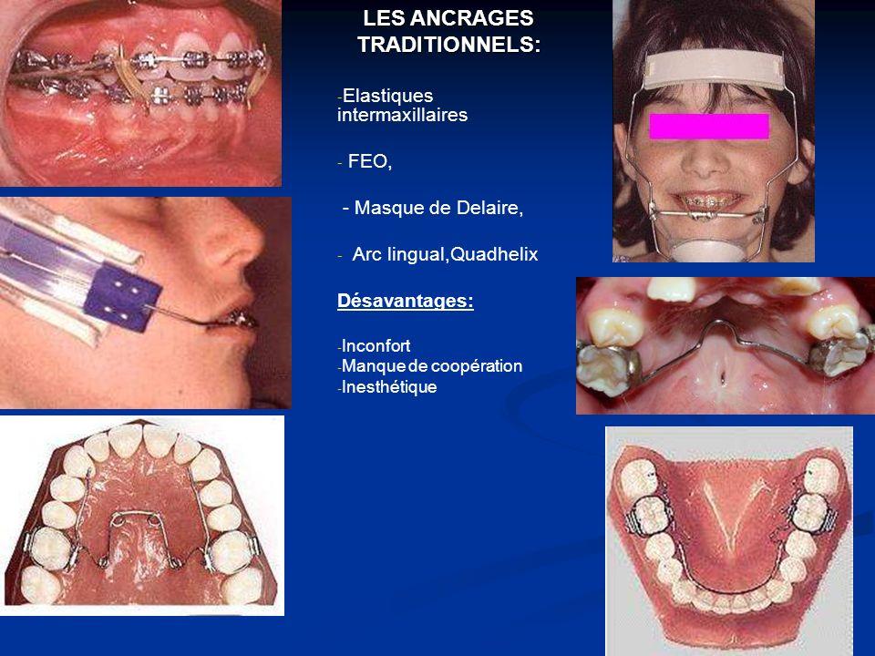 IMPLANTS OSTEOINTEGRES IMPLANTS OSTEOINTEGRES Dimensions importantes, coût important et caractère invasif