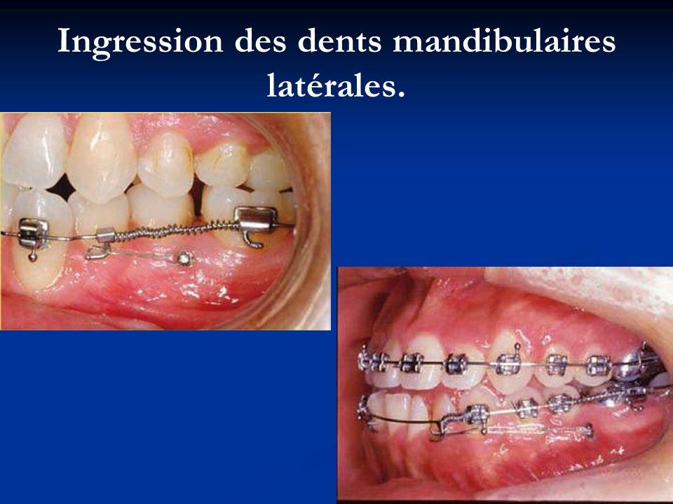 Ingression des dents mandibulaires latérales.