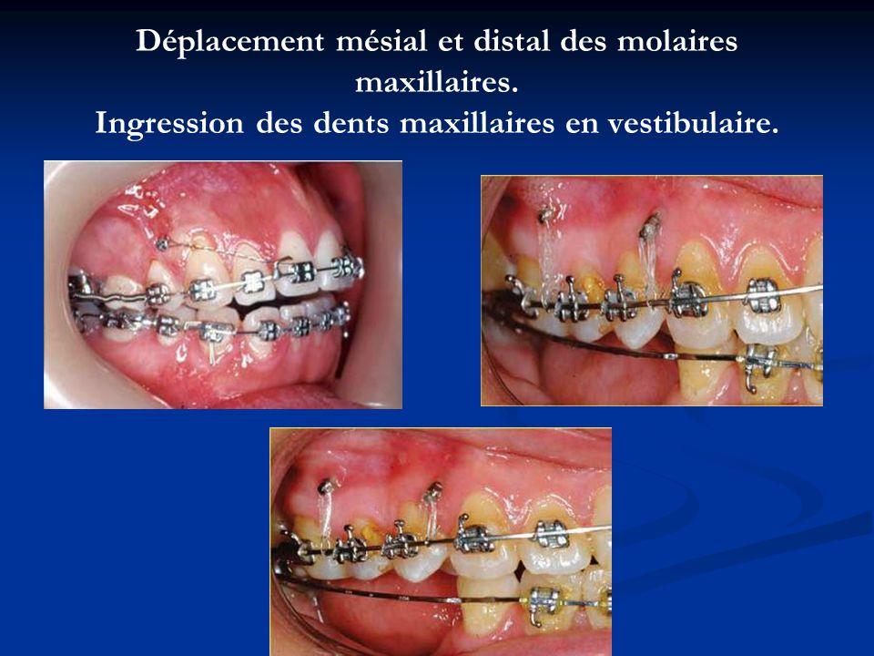 Déplacement mésial et distal des molaires maxillaires. Ingression des dents maxillaires en vestibulaire.