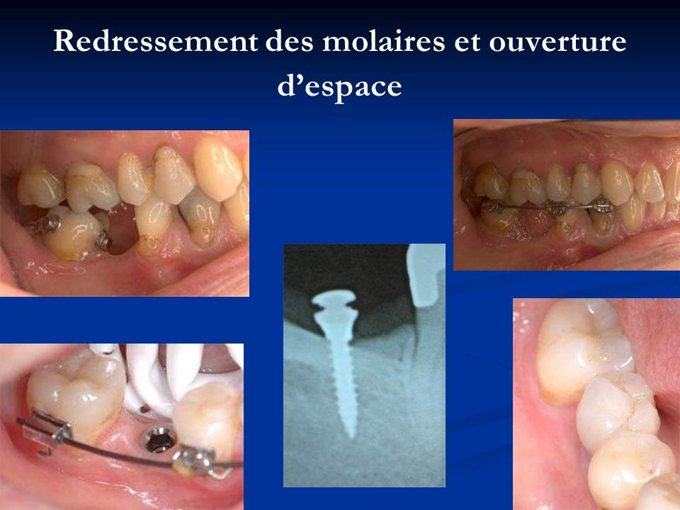 Redressement des molaires et ouverture despace
