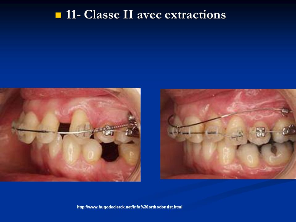 11- Classe II avec extractions 11- Classe II avec extractions http://www.hugodeclerck.net/info%20orthodontist.html