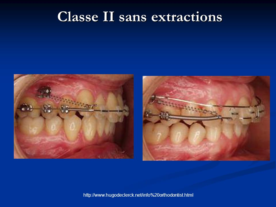 Classe II sans extractions Classe II sans extractions http://www.hugodeclerck.net/info%20orthodontist.html