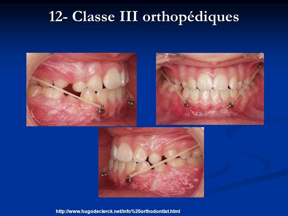 12- Classe III orthopédiques http://www.hugodeclerck.net/info%20orthodontist.html