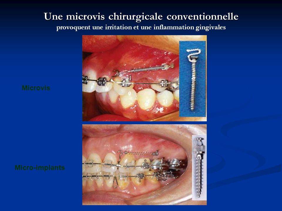 Une microvis chirurgicale conventionnelle Une microvis chirurgicale conventionnelle provoquent une irritation et une inflammation gingivales Micro-imp