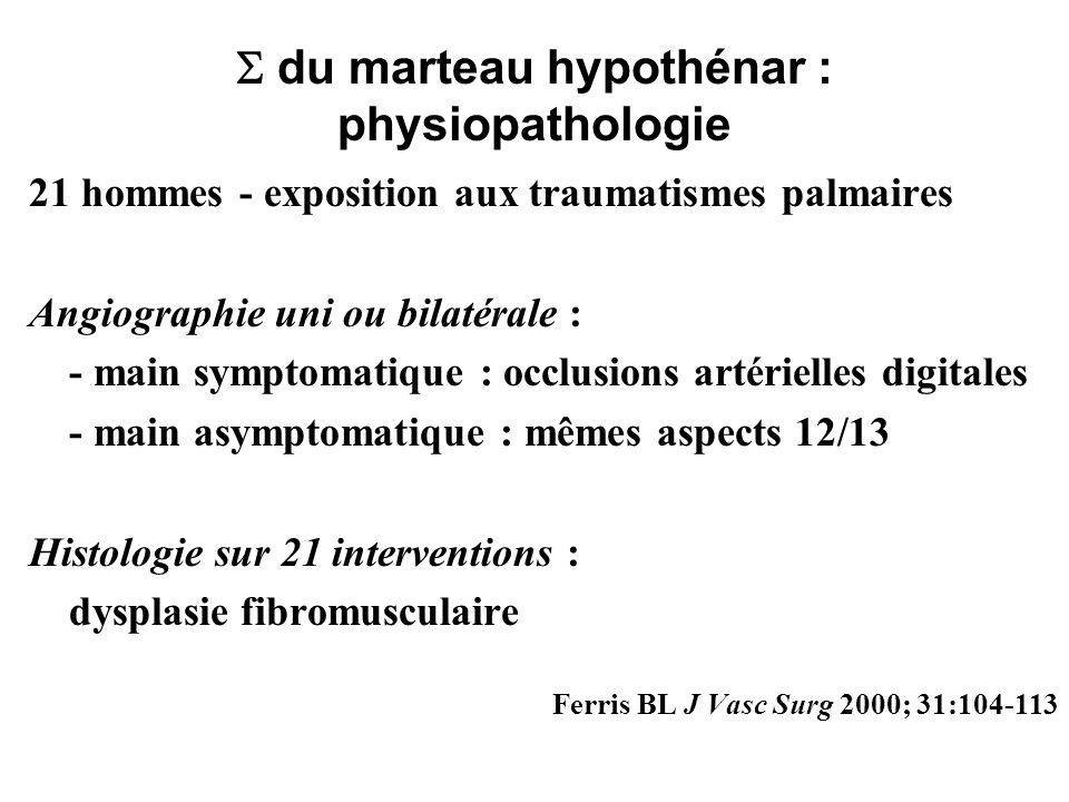 du marteau hypothénar : physiopathologie 21 hommes - exposition aux traumatismes palmaires Angiographie uni ou bilatérale : - main symptomatique : occ