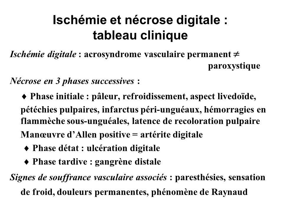 Sclérodermie : Facteurs prédictifs d ischémie digitale (2) Ischémie sévère - sclérodermies Oui n=31Non n=37 ACL(IgG)310 %1027 %p = 0,06 ACL(IgM)826 %616 %NS Anti-centromère1755 %924 %p = 0,01 Anti-Scl 70 Kd619 %25 %p = 0,08 topoisomérase I Herrick AL Ann Rheum Dis 1994;53:540-542