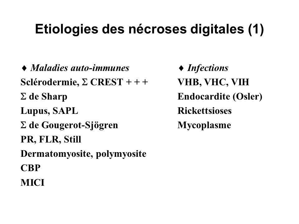 Etiologies des nécroses digitales (1) Maladies auto-immunes Sclérodermie, CREST + + + de Sharp Lupus, SAPL de Gougerot-Sjögren PR, FLR, Still Dermatom