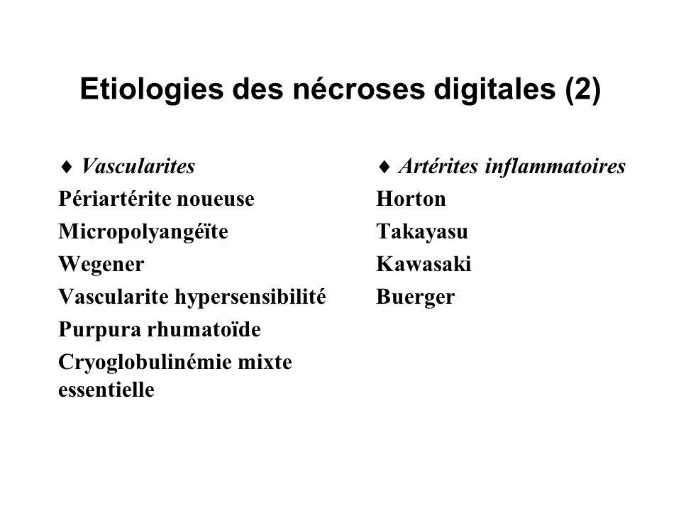 Etiologies des nécroses digitales (2) Vascularites Périartérite noueuse Micropolyangéïte Wegener Vascularite hypersensibilité Purpura rhumatoïde Cryog