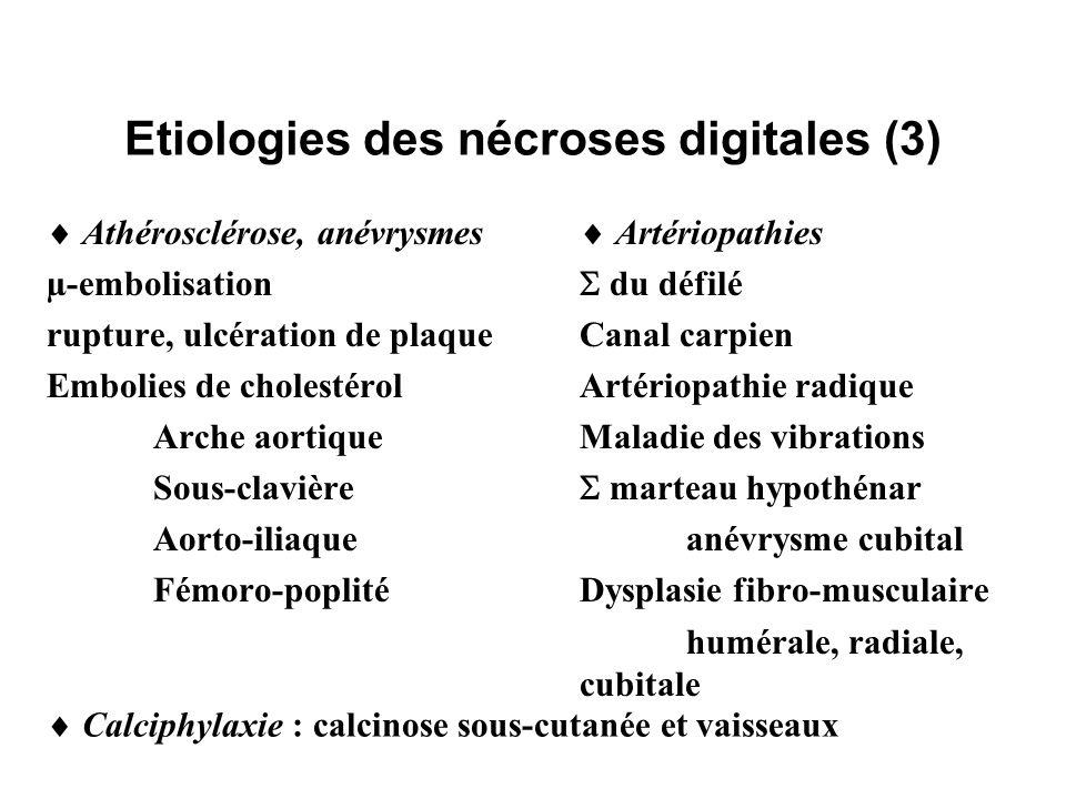 Etiologies des nécroses digitales (4) Cardiopathies emboligènes µ-embolisation Myxome Infarctus du myocarde Valvulopathies Endocardite infectieuse non bactérienne thrombosante Troubles du rythme Endocrinopathies Hyper ou hypothyroïdie Thyroïdite Phéochromocytome Cushing