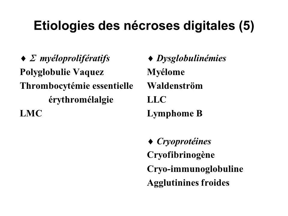 Etiologies des nécroses digitales (6) Cancers Cancers solides Lymphomes Hyperéosinophilique clône T producteur IL-5 Chimiothérapie, hormonothérapie Bléomycine, 5-FU, vincristine, Cys-platine Tamoxifène Thrombophilies congénitales ou acquises CIVD aiguë de réanimation CIVD chronique TIH APL