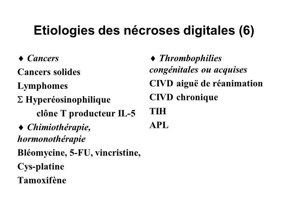 Etiologies des nécroses digitales (6) Cancers Cancers solides Lymphomes Hyperéosinophilique clône T producteur IL-5 Chimiothérapie, hormonothérapie Bl