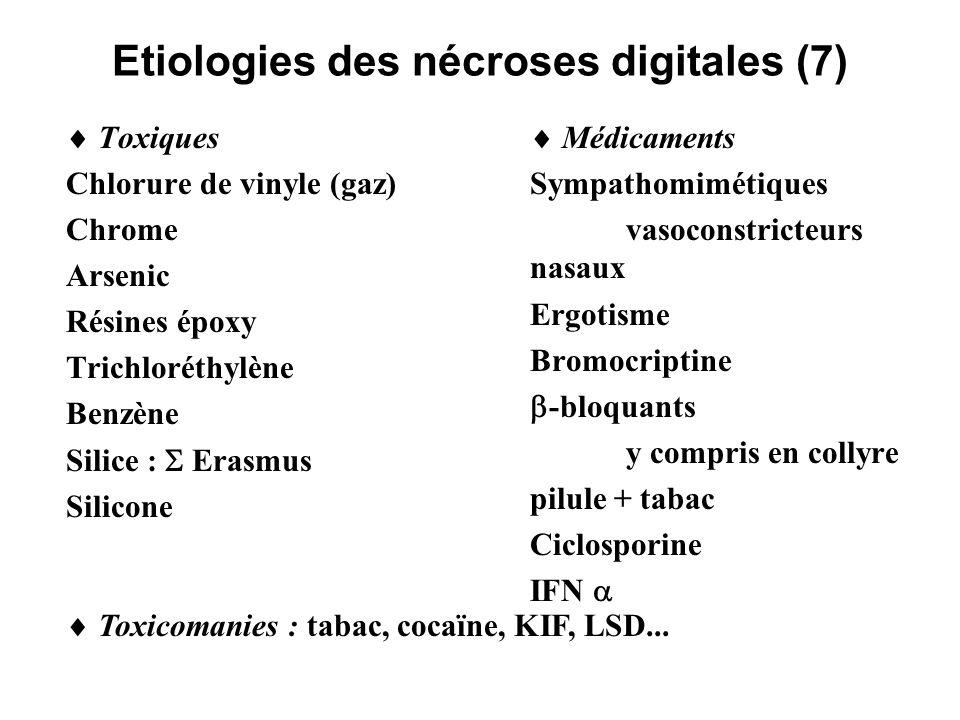 Etiologies des nécroses digitales (7) Toxiques Chlorure de vinyle (gaz) Chrome Arsenic Résines époxy Trichloréthylène Benzène Silice : Erasmus Silicon