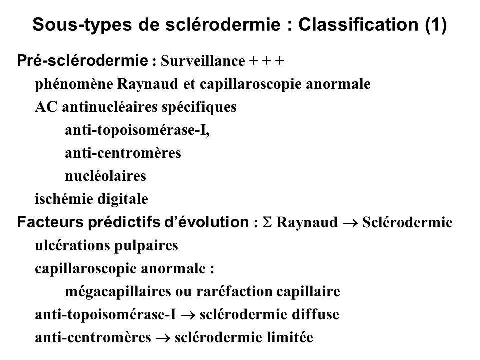 Sous-types de sclérodermie : Classification (1) Pré-sclérodermie : Surveillance + + + phénomène Raynaud et capillaroscopie anormale AC antinucléaires