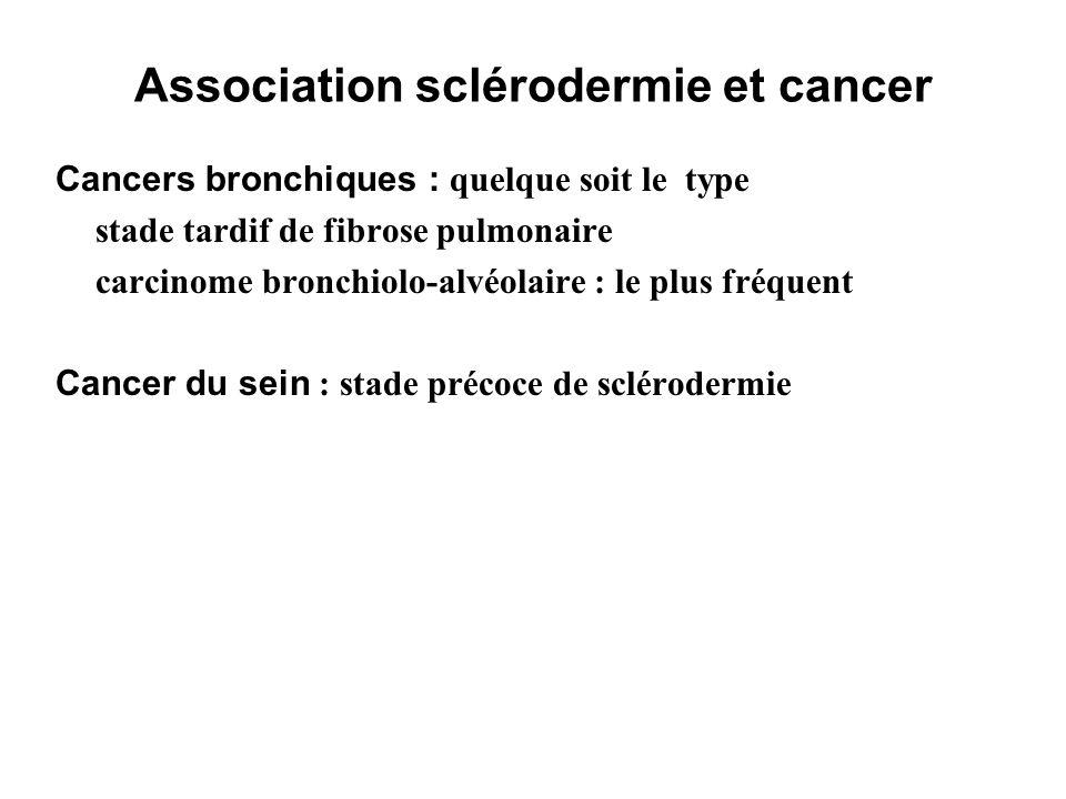 Association sclérodermie et cancer Cancers bronchiques : quelque soit le type stade tardif de fibrose pulmonaire carcinome bronchiolo-alvéolaire : le
