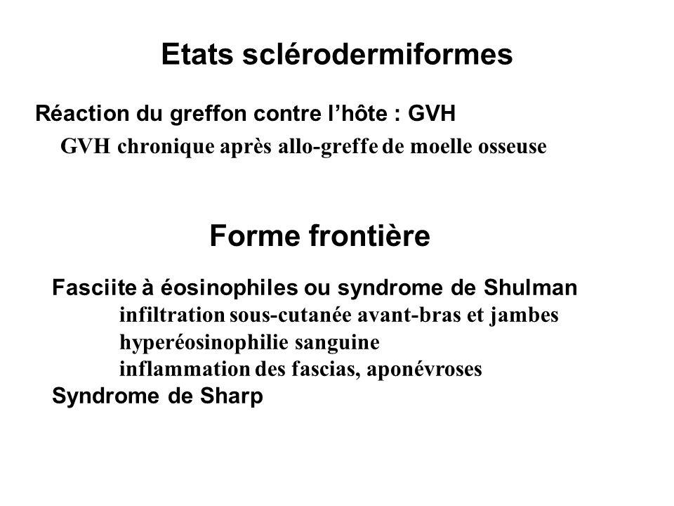 Etats sclérodermiformes Réaction du greffon contre lhôte : GVH GVH chronique après allo-greffe de moelle osseuse Forme frontière Fasciite à éosinophil