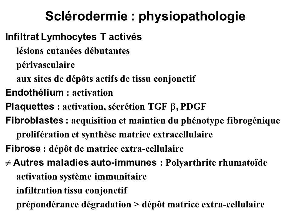 Sclérodermie : physiopathologie Infiltrat Lymhocytes T activés lésions cutanées débutantes périvasculaire aux sites de dépôts actifs de tissu conjonct