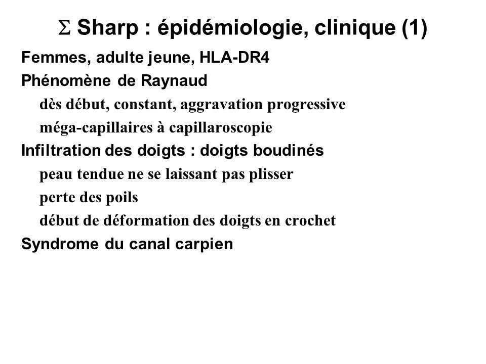 Sharp : épidémiologie, clinique (1) Femmes, adulte jeune, HLA-DR4 Phénomène de Raynaud dès début, constant, aggravation progressive méga-capillaires à