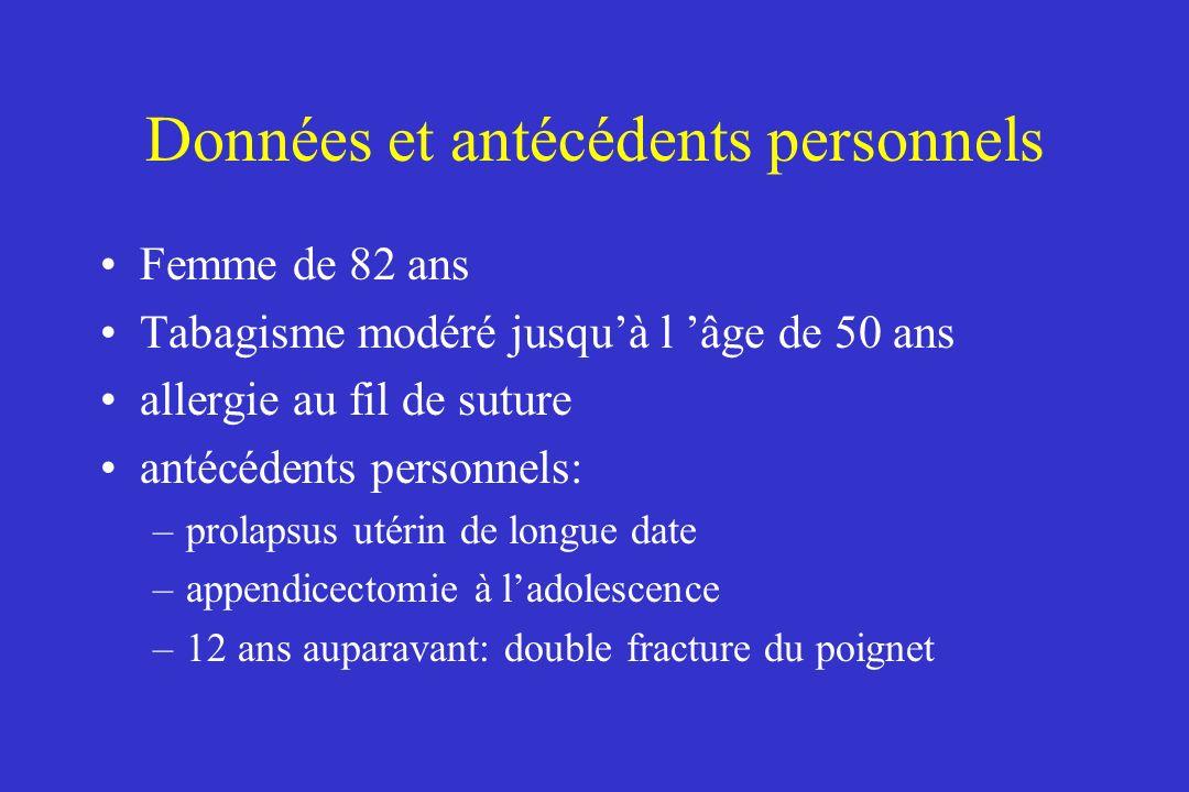 Affection actuelle Rectorragies depuis un mois aboutissant au diagnostic dadénocarcinome colique dans le bilan préopératoire, une échographie cardiaque et des épreuves fonctionnelles respiratoires sont normales J0 : colectomie segmentaire avec hystérectomie totale