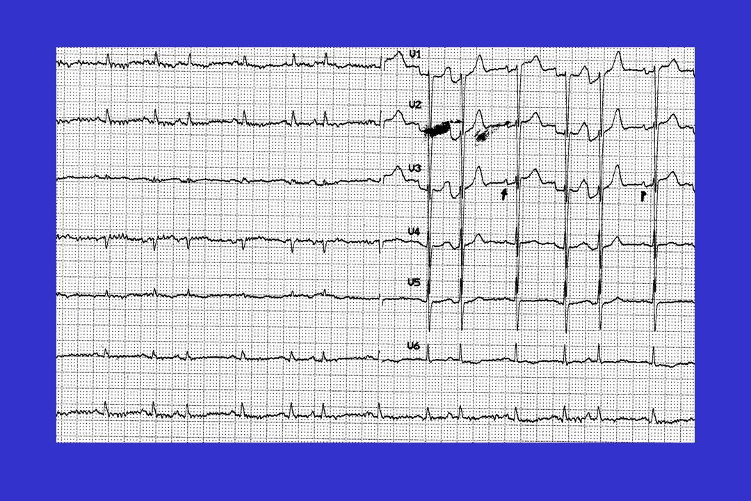 A ladmission à l USI La patiente plaint de dyspnée pour des efforts modérés A lexamen physique (points positifs): tachycardie à 105/min, souffle systolique 2/6 de type mitral, râles crépitants secs sur les 2/3 inférieurs des deux champs pulmonaires, ballonnement abdominal, sensibilité du mollet gauche (sans OMI) ECG, biologie, RX thorax, scintigraphie pulmonaire, CTscan thoracique: cf diapositives suivantes
