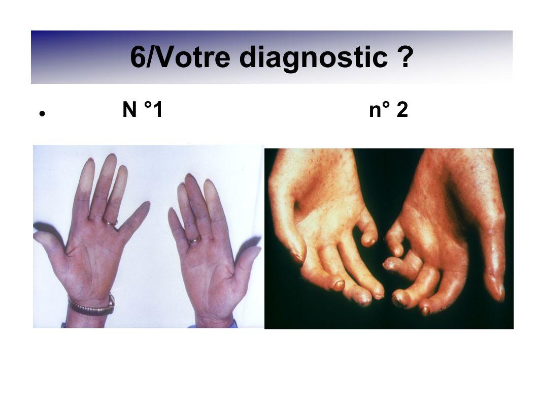 6/Votre diagnostic ? N °1 n° 2